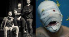 Metal: OXX og HIRAKI på scenen i Sønderborghus